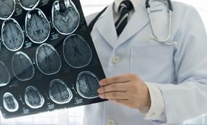scanner neurologue